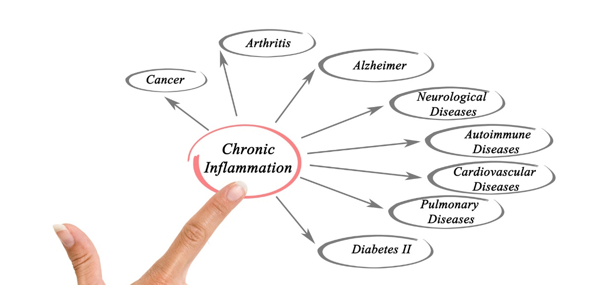 Inflammation and CBD | Solutions and Research